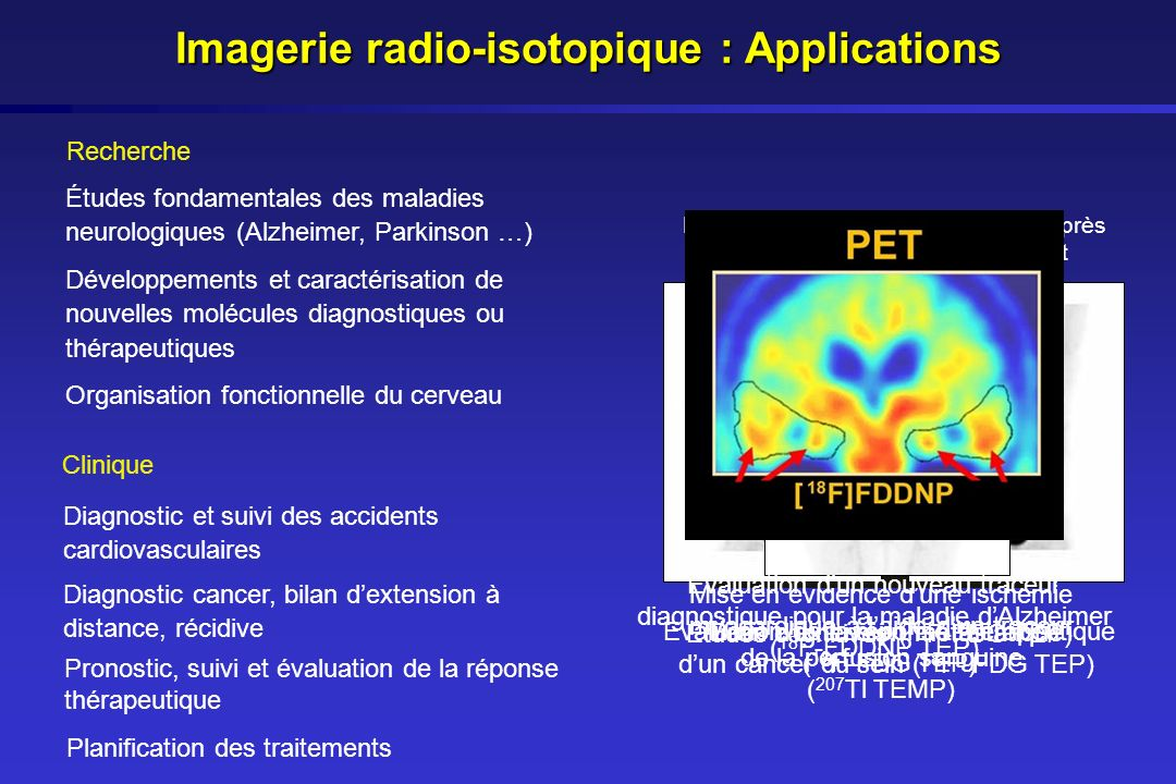 Imagerie radio-isotopique : Applications