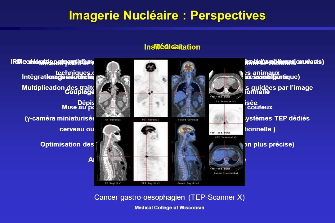 Imagerie Nucléaire : Perspectives