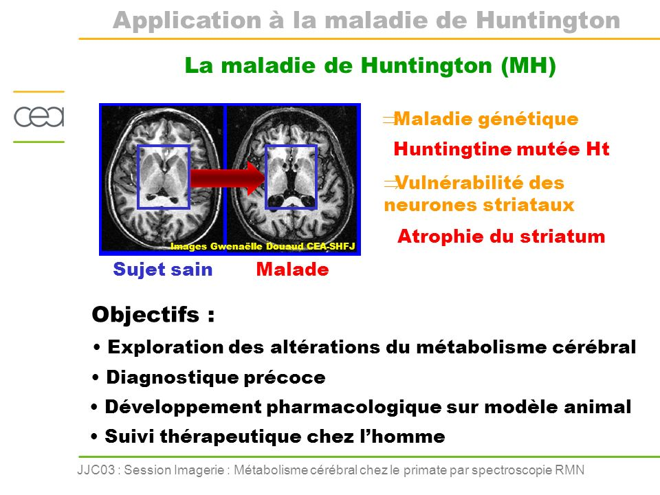 Application à la maladie de Huntington