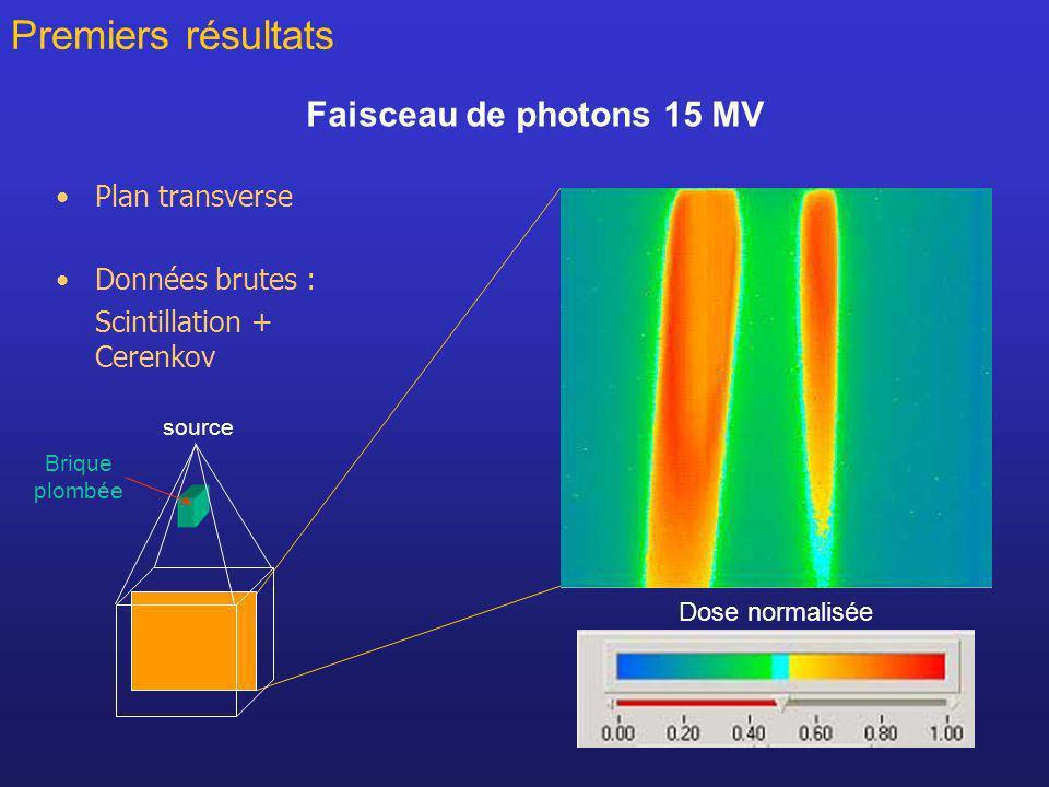 Premiers résultats Faisceau de photons 15 MV Plan transverse