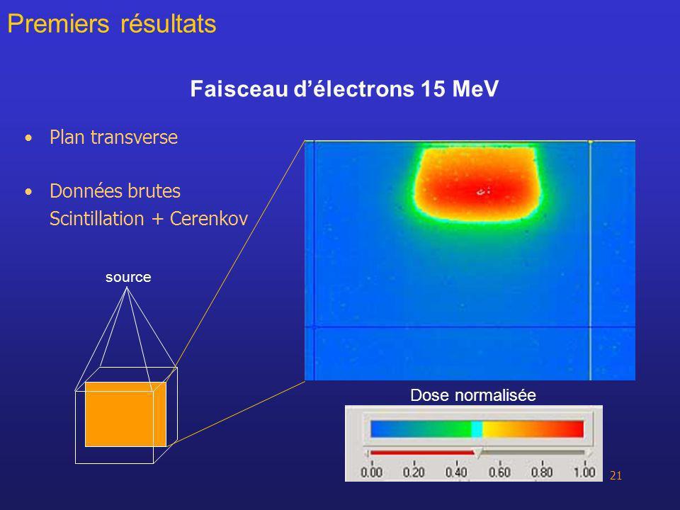 Faisceau d'électrons 15 MeV