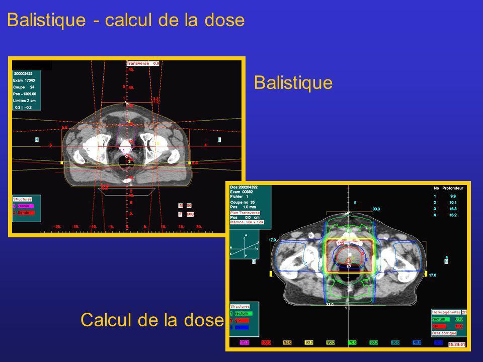 Balistique - calcul de la dose