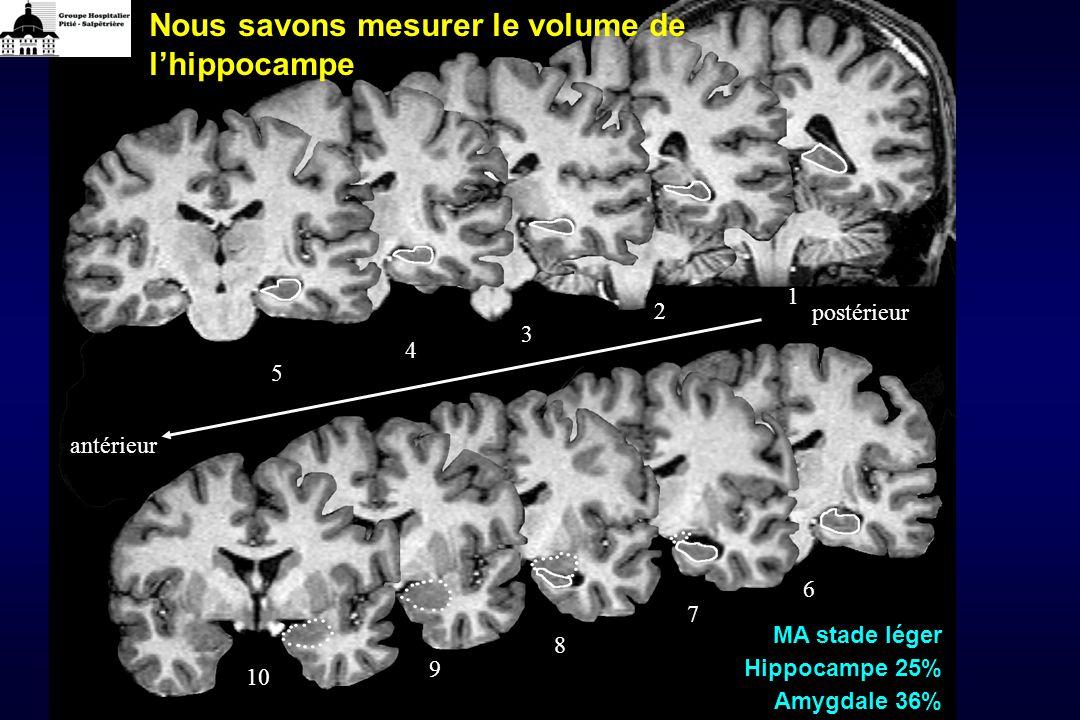 Nous savons mesurer le volume de l'hippocampe