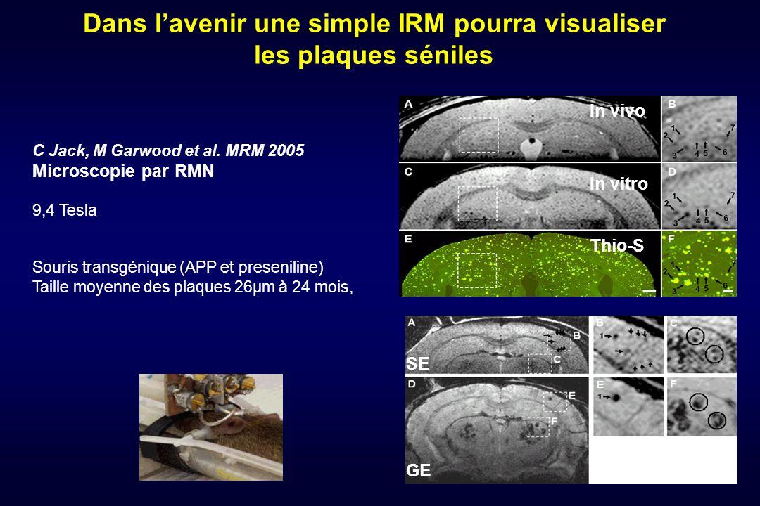 Dans l'avenir une simple IRM pourra visualiser les plaques séniles