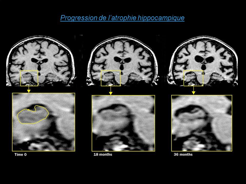Progression de l'atrophie hippocampique
