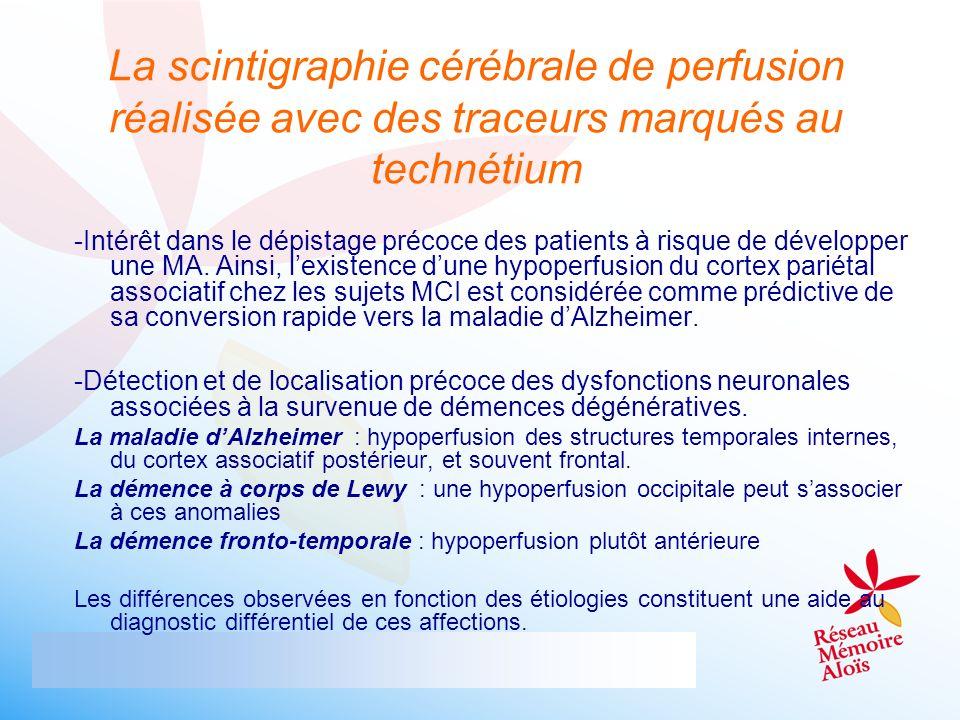 La scintigraphie cérébrale de perfusion réalisée avec des traceurs marqués au technétium