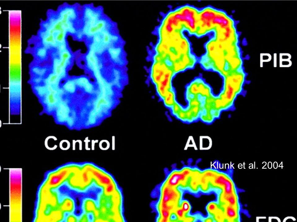 On peut visualiser in vivo les lésions de la maladie
