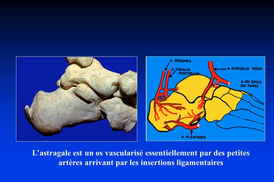 L'astragale est un os vascularisé essentiellement par des petites artères arrivant par les insertions ligamentaires