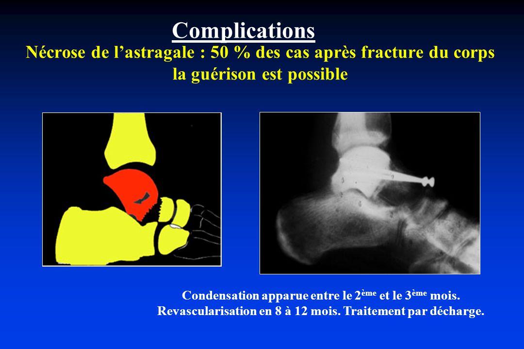 Complications Nécrose de l'astragale : 50 % des cas après fracture du corps la guérison est possible.