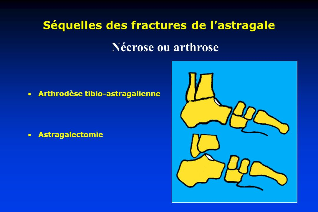 Séquelles des fractures de l'astragale
