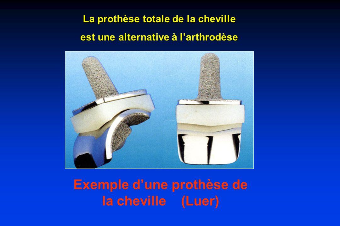 Exemple d'une prothèse de la cheville (Luer)
