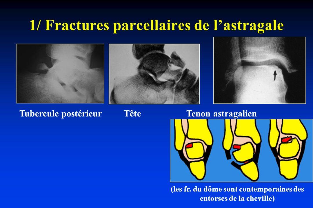 1/ Fractures parcellaires de l'astragale