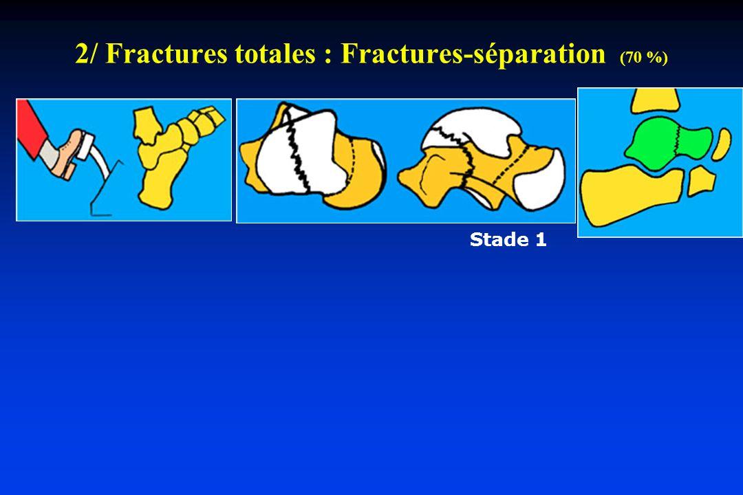 2/ Fractures totales : Fractures-séparation (70 %)