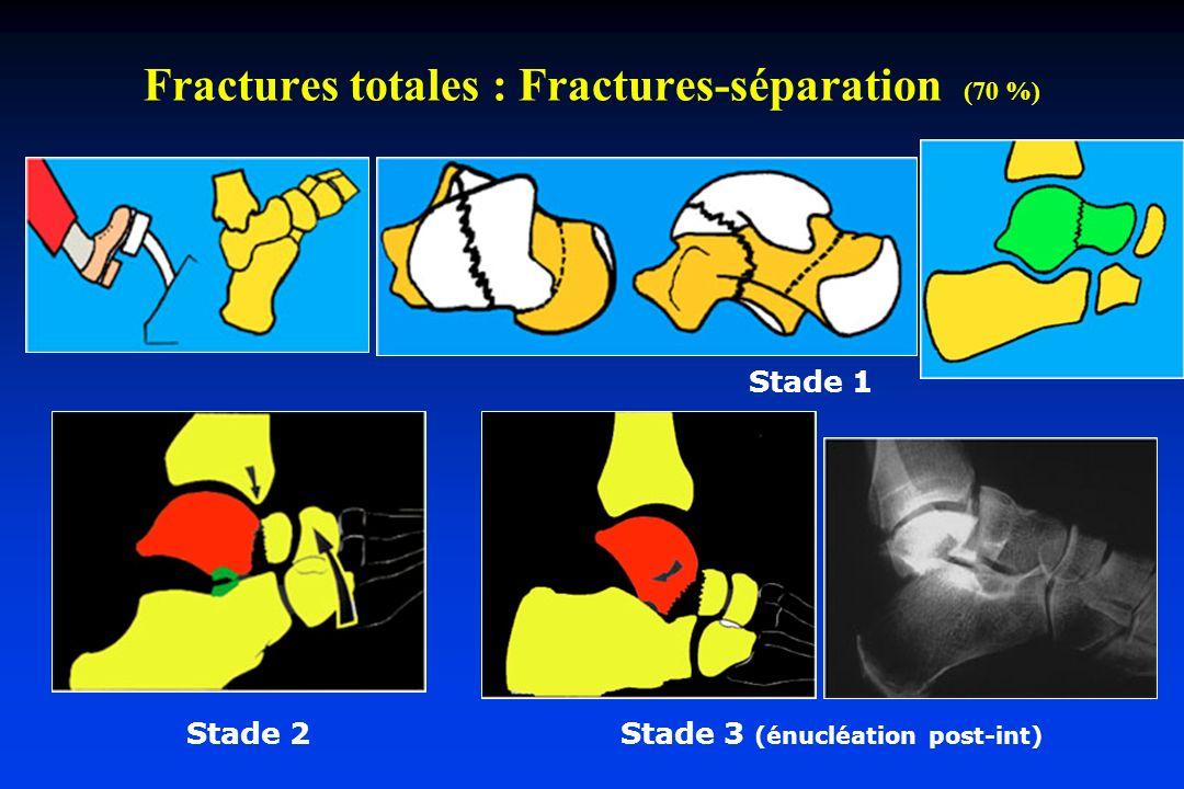 Fractures totales : Fractures-séparation (70 %)