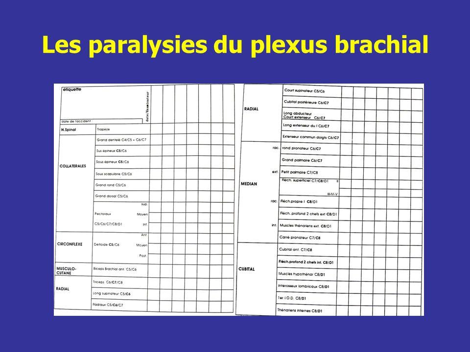 Les paralysies du plexus brachial