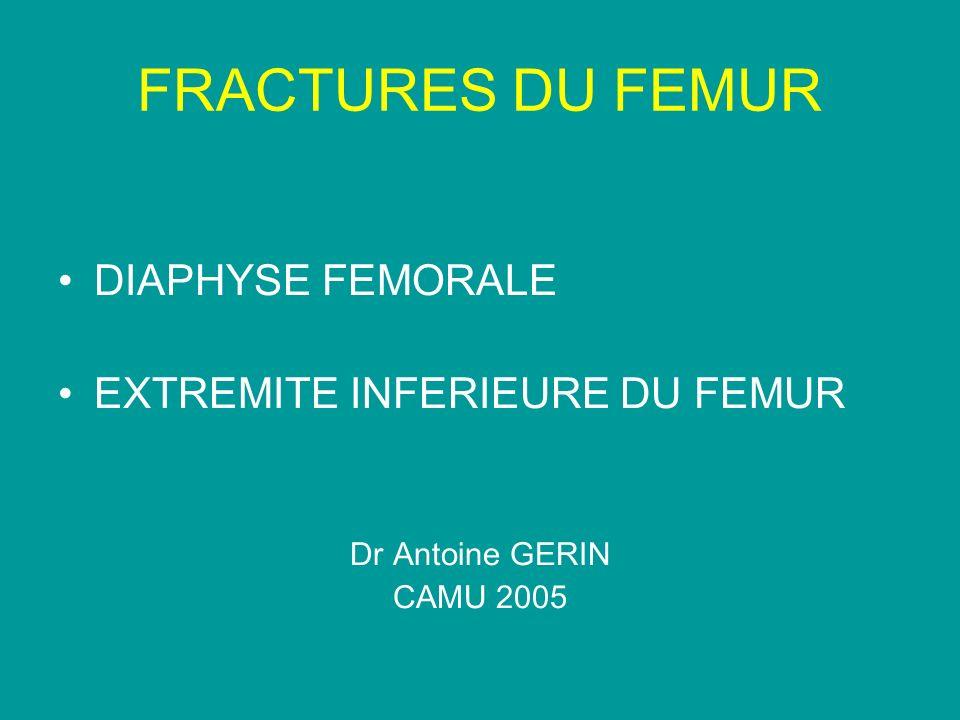 FRACTURES DU FEMUR DIAPHYSE FEMORALE EXTREMITE INFERIEURE DU FEMUR