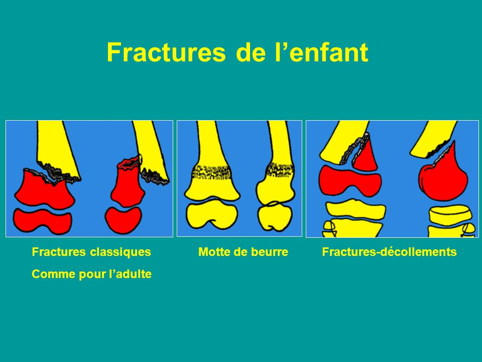 Fractures de l'enfant Fractures classiques Motte de beurre Fractures-décollements.