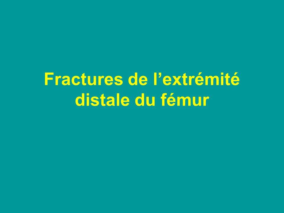 Fractures de l'extrémité distale du fémur