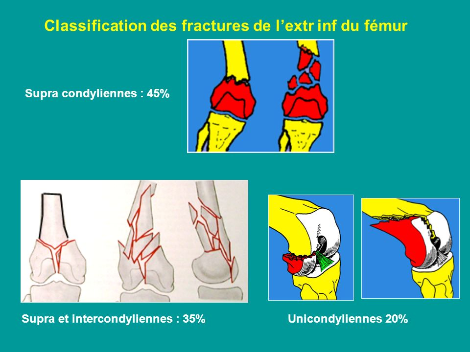Classification des fractures de l'extr inf du fémur