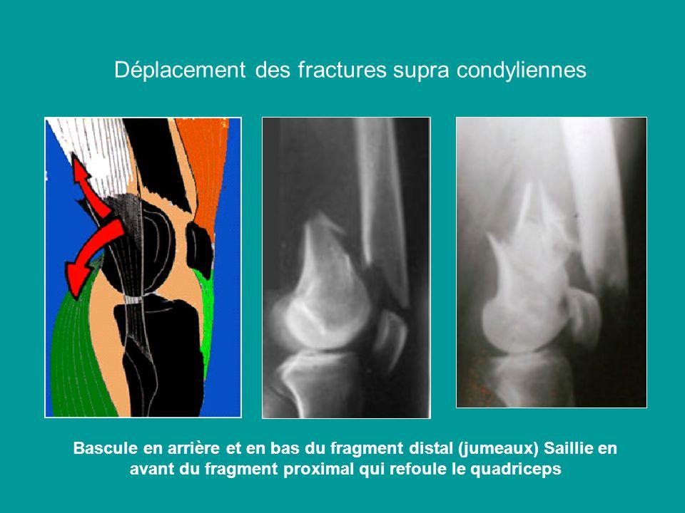 Déplacement des fractures supra condyliennes