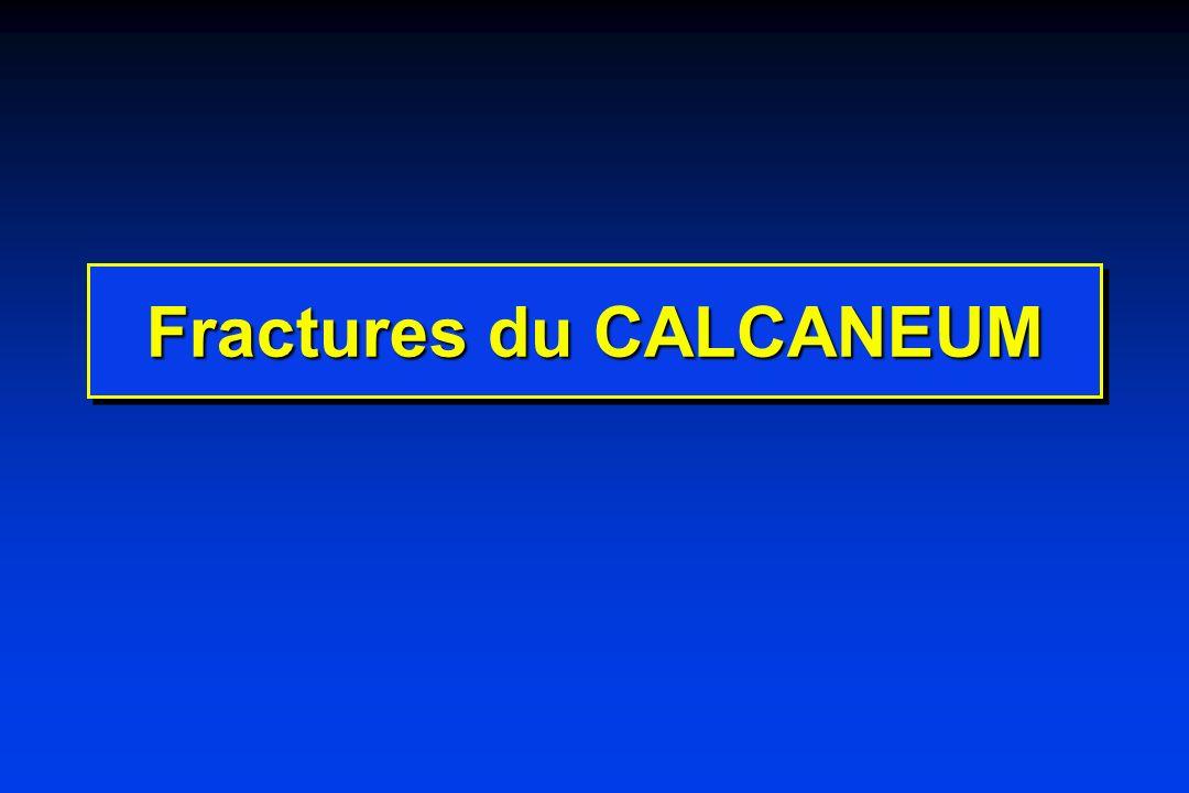 Fractures du CALCANEUM