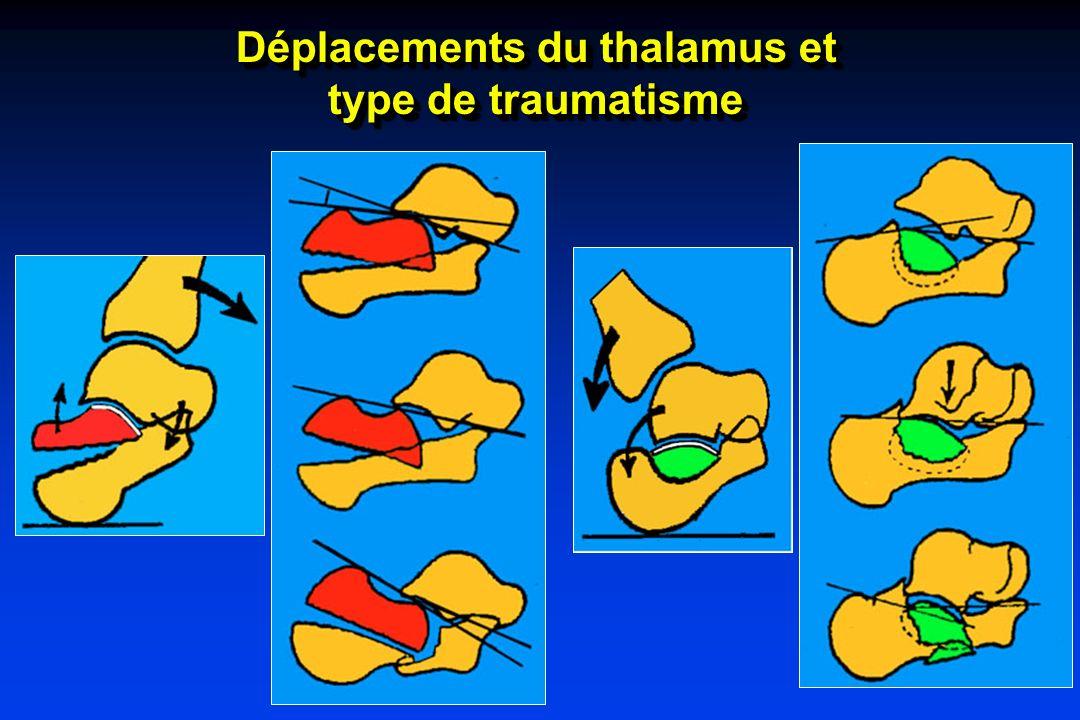 Déplacements du thalamus et
