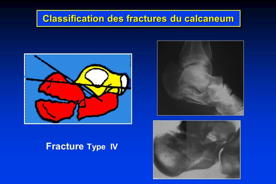 Classification des fractures du calcaneum