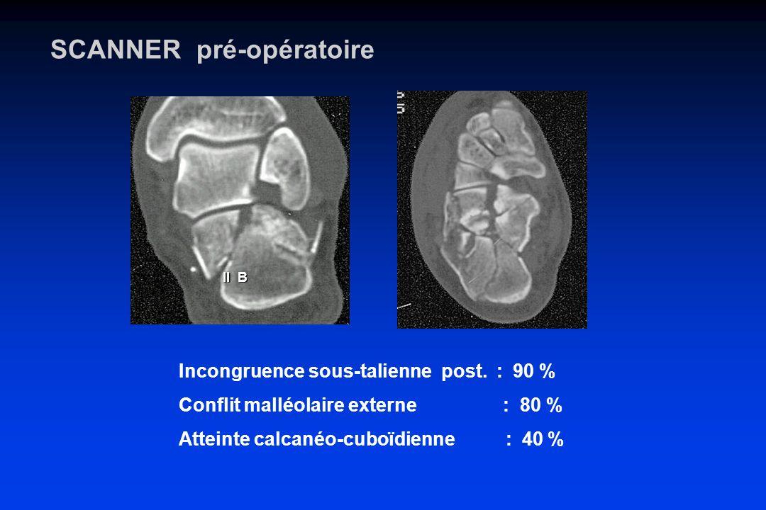 SCANNER pré-opératoire