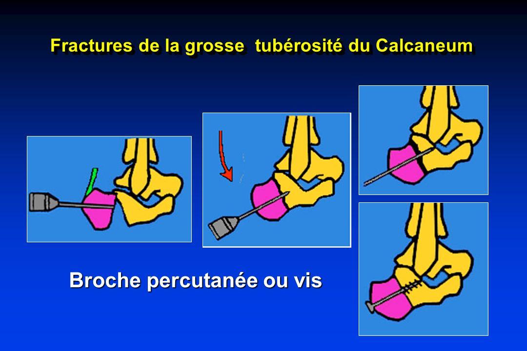 Fractures de la grosse tubérosité du Calcaneum