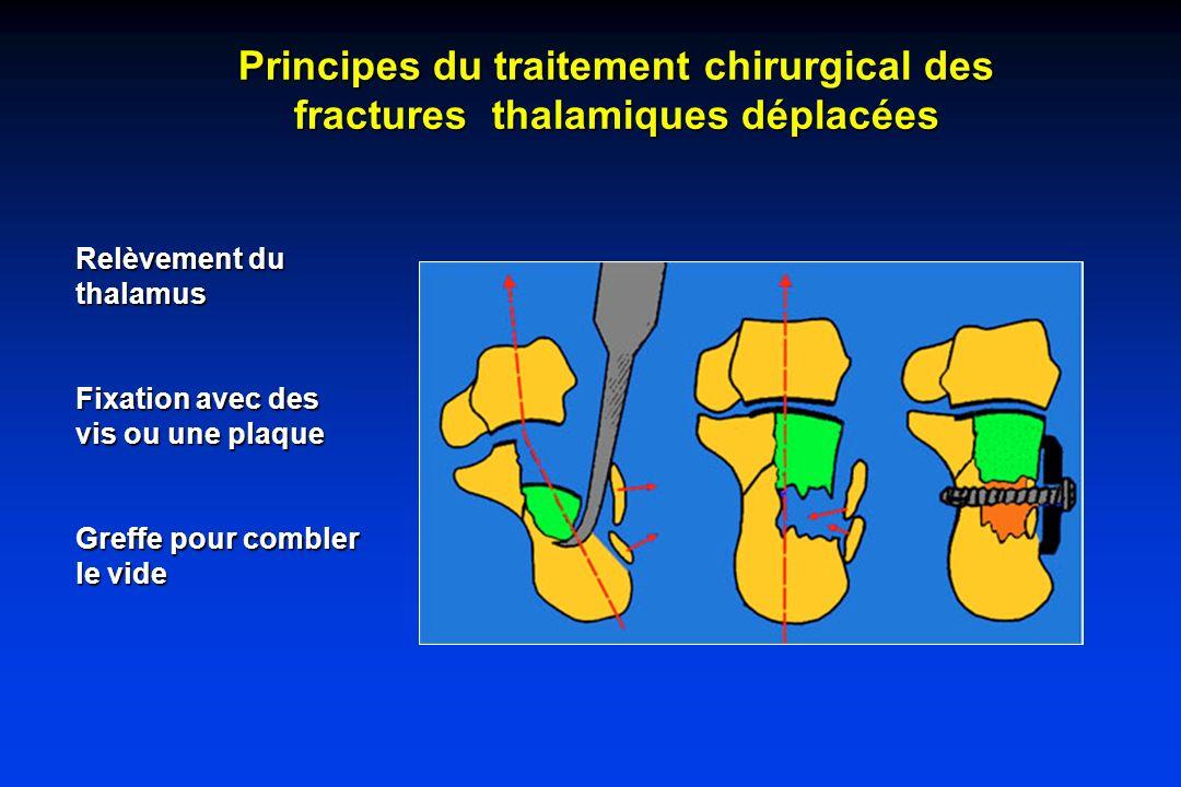 Principes du traitement chirurgical des fractures thalamiques déplacées