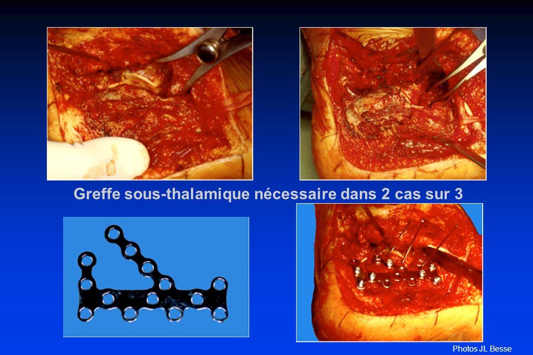 Greffe sous-thalamique nécessaire dans 2 cas sur 3
