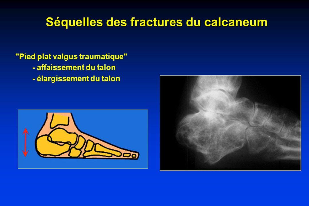 Séquelles des fractures du calcaneum