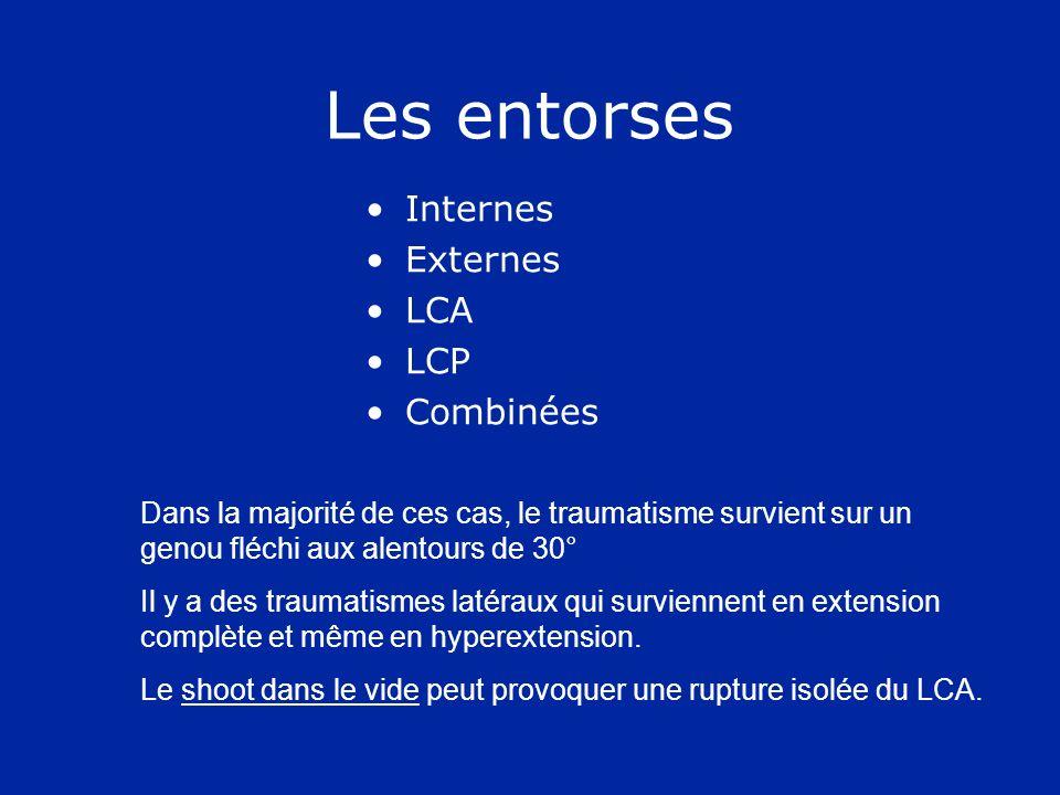 Les entorses Internes Externes LCA LCP Combinées