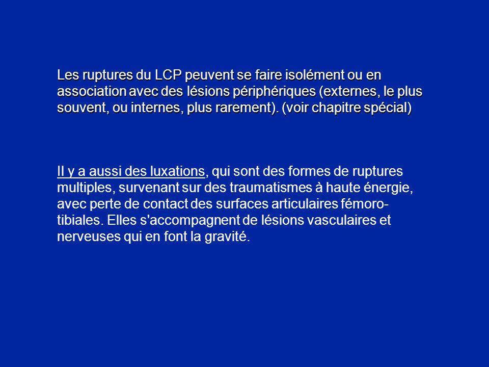 Les ruptures du LCP peuvent se faire isolément ou en association avec des lésions périphériques (externes, le plus souvent, ou internes, plus rarement). (voir chapitre spécial)
