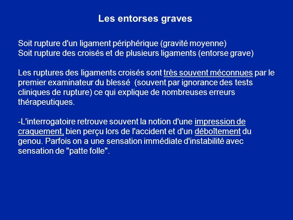 Les entorses graves Soit rupture d un ligament périphérique (gravité moyenne) Soit rupture des croisés et de plusieurs ligaments (entorse grave)