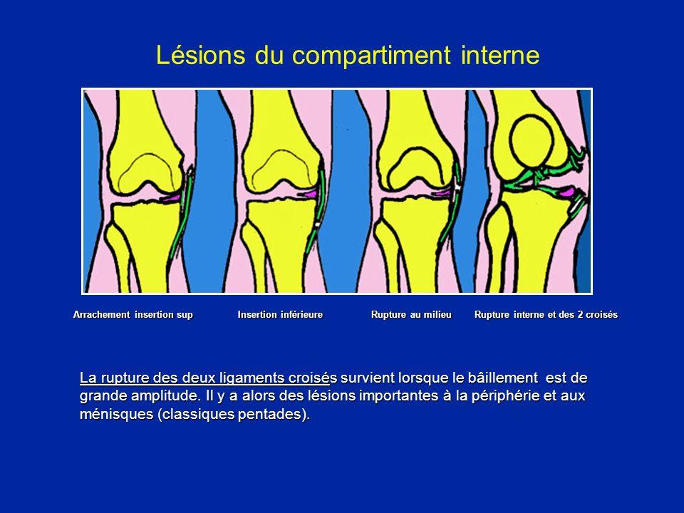Lésions du compartiment interne