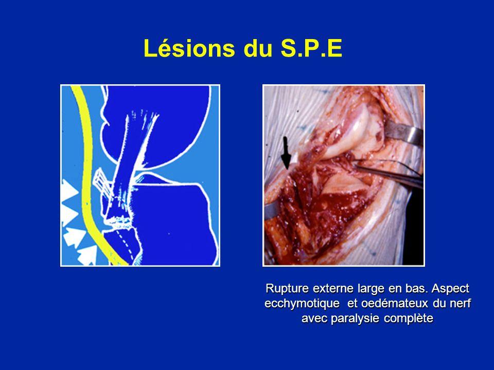 Lésions du S.P.E Rupture externe large en bas.