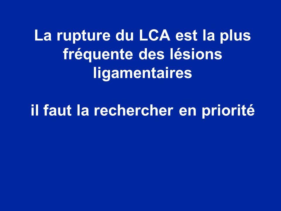 La rupture du LCA est la plus fréquente des lésions ligamentaires il faut la rechercher en priorité