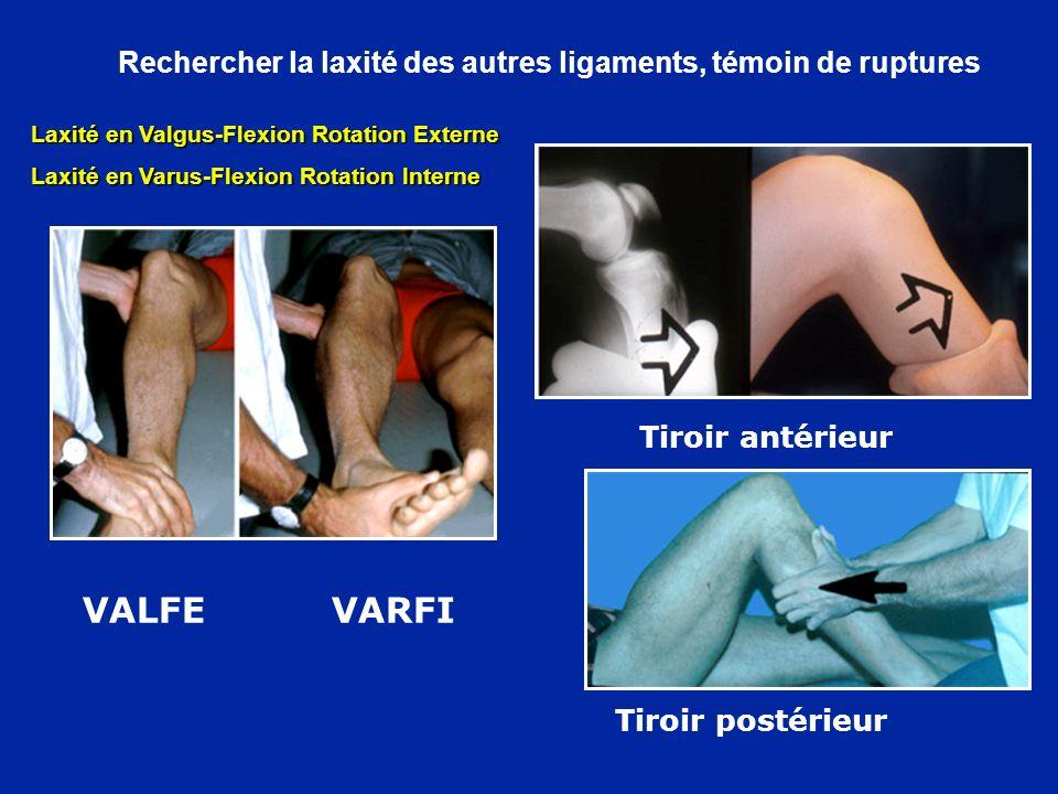 Rechercher la laxité des autres ligaments, témoin de ruptures