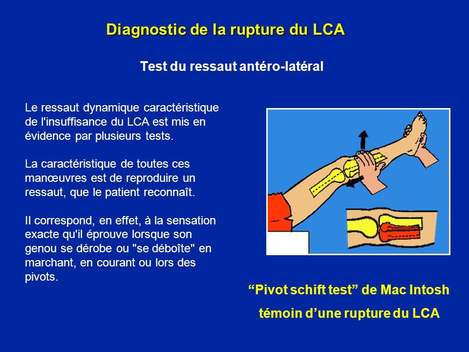 Test du ressaut antéro-latéral