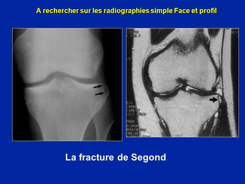 A rechercher sur les radiographies simple Face et profil