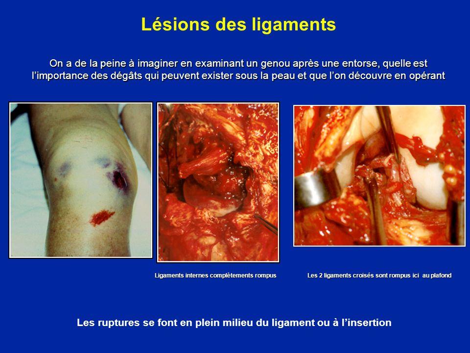 Les ruptures se font en plein milieu du ligament ou à l'insertion