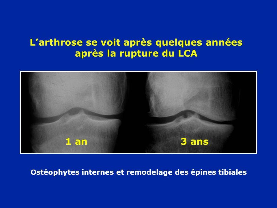 L'arthrose se voit après quelques années après la rupture du LCA