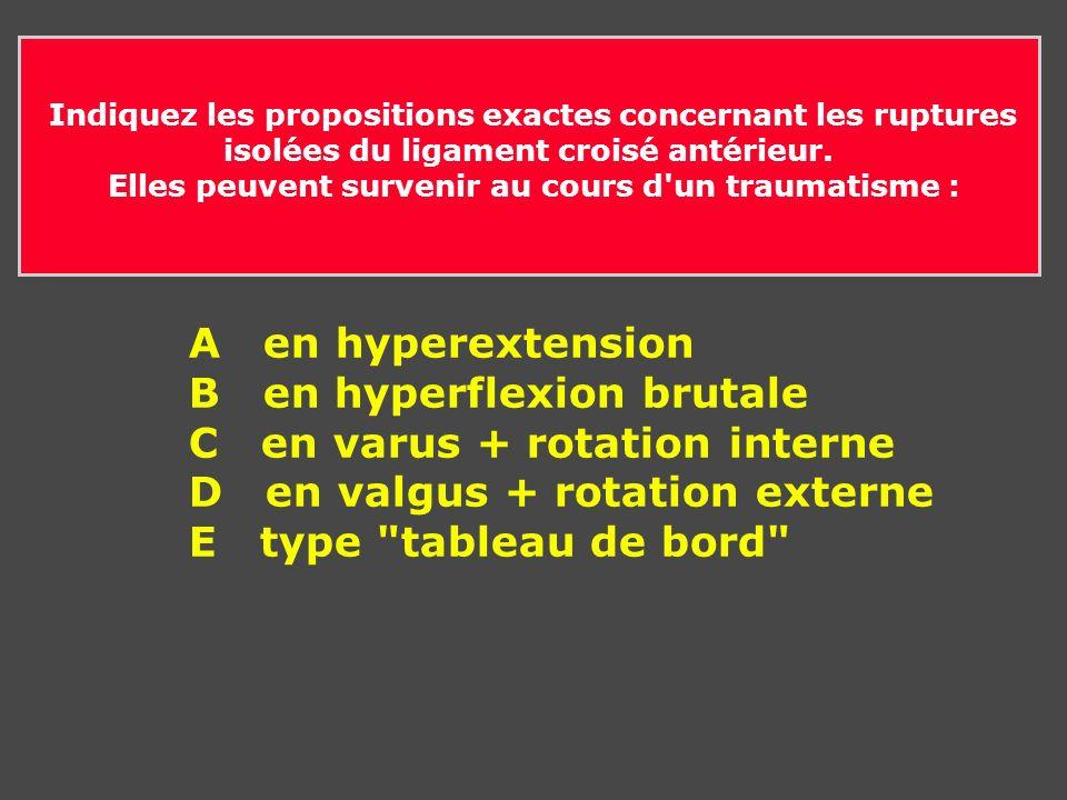 B en hyperflexion brutale C en varus + rotation interne