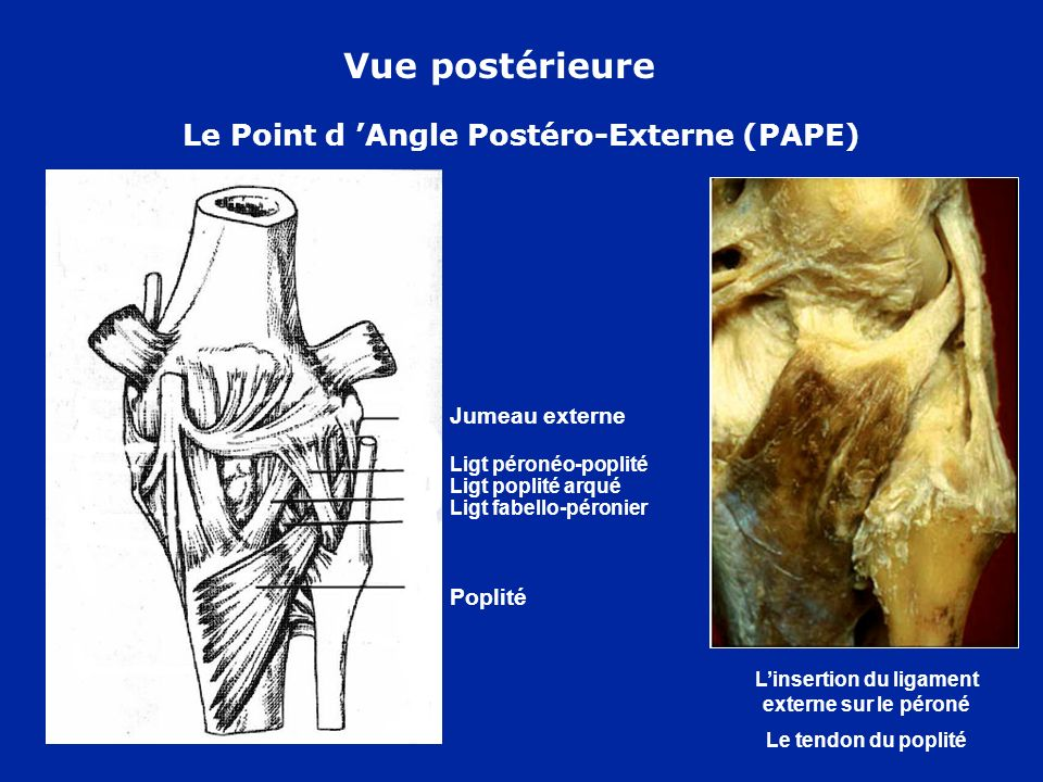 Le Point d 'Angle Postéro-Externe (PAPE)