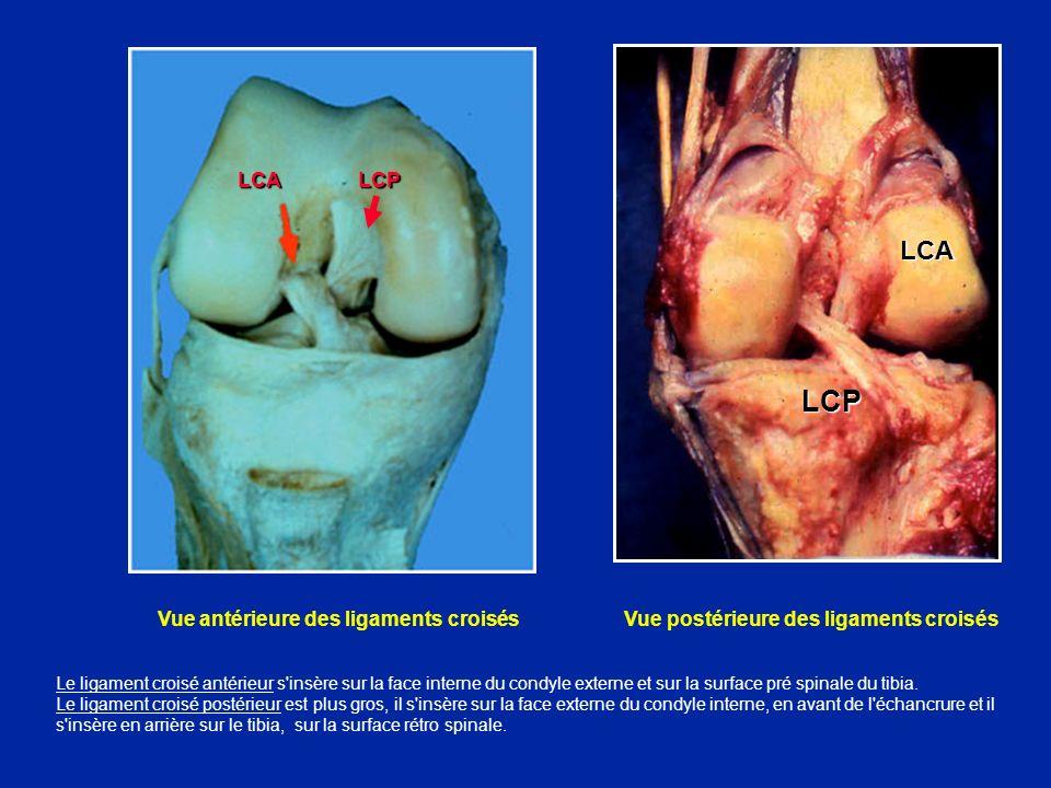 LCA LCP LCA. LCP. Vue antérieure des ligaments croisés Vue postérieure des ligaments croisés.