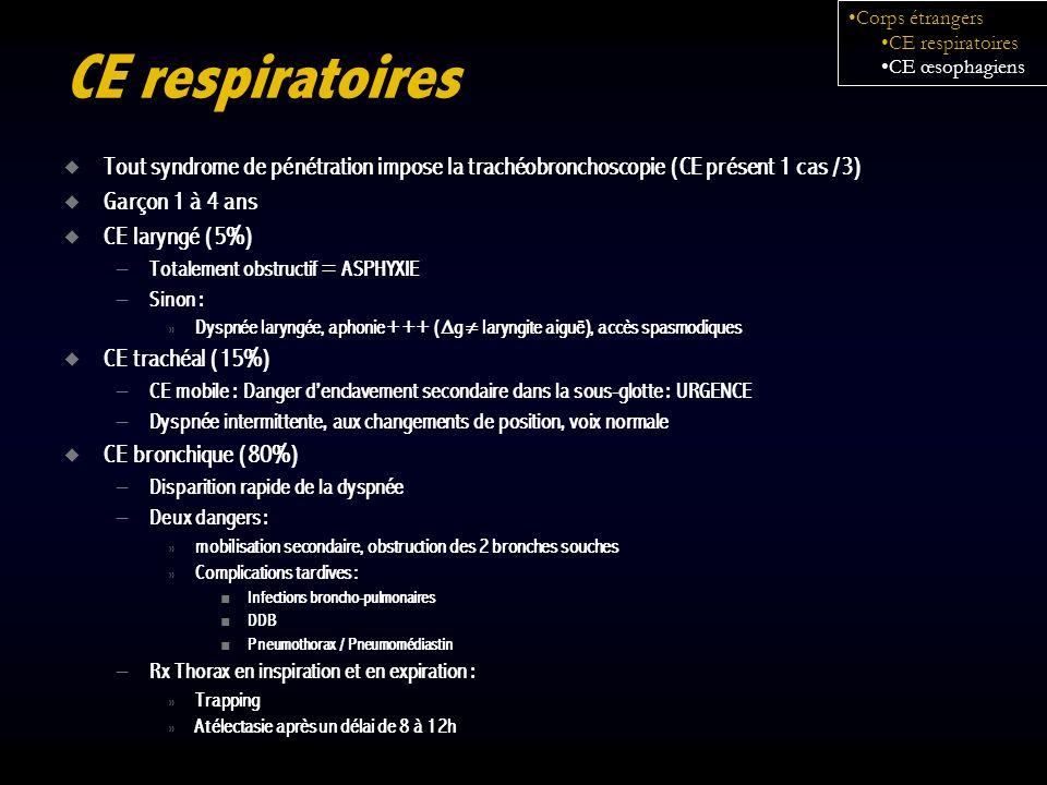 Corps étrangersCE respiratoires. CE œsophagiens. CE respiratoires. Tout syndrome de pénétration impose la trachéobronchoscopie (CE présent 1 cas /3)
