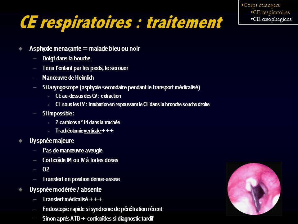 CE respiratoires : traitement