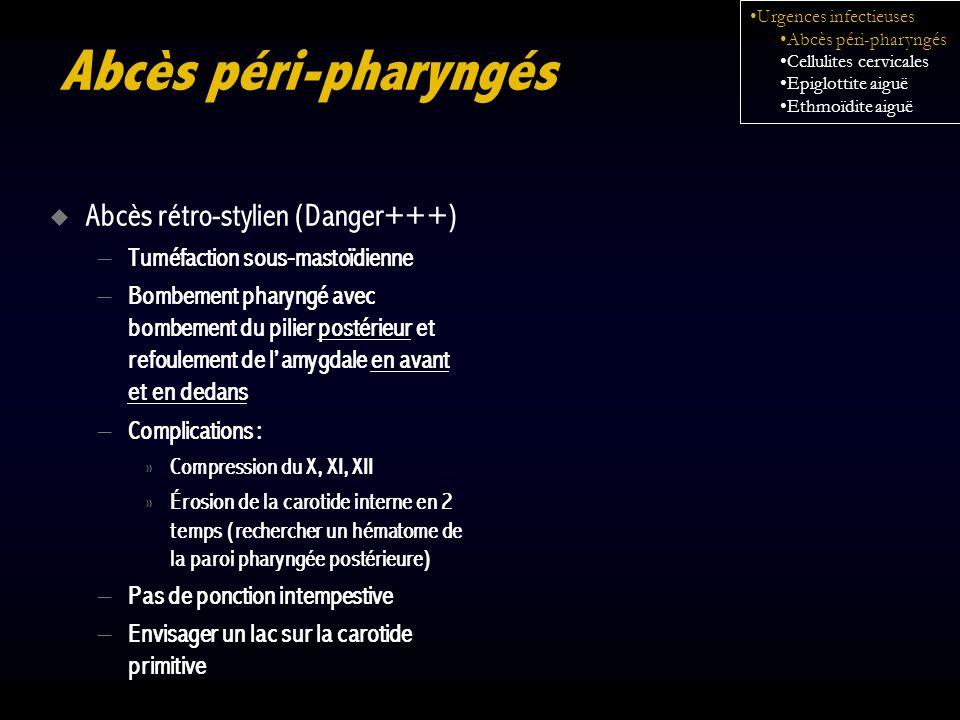 Abcès péri-pharyngés Abcès rétro-stylien (Danger+++)