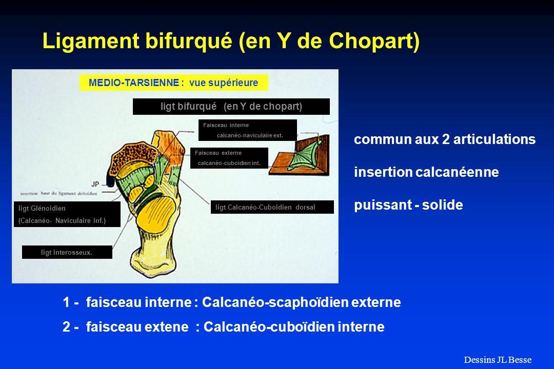 ligt bifurqué (en Y de chopart) MEDIO-TARSIENNE : vue supérieure